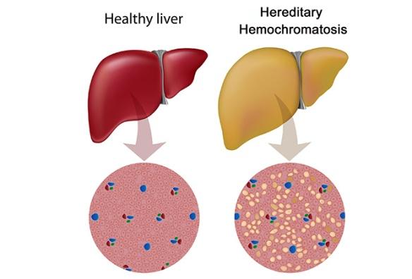 Hereditary-Hemochromatosis